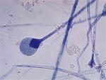 Apophysomyces_trapeziformis_B9324