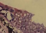Batrachochytrium_salamandrivorans