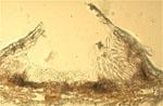 Colletotrichum_gloeosporioides_TYU