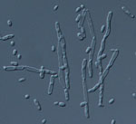 Kluyveromyces_aestuarii_ATCC_18862