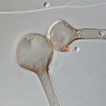 Lichtheimia_corymbifera_B5792