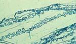 Neotyphodium_coenophialum