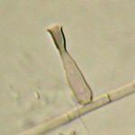 Phialophora_verrucosa_BMU07605