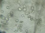 Pyrenophora_seminiperda_CCB06