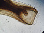 Strongylus_vulgaris