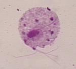Trichomonas_vaginalis_ATCC_30188