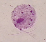 Trichomonas_vaginalis_G3